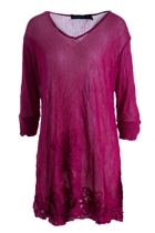 Filigree Detail Hem Tunic